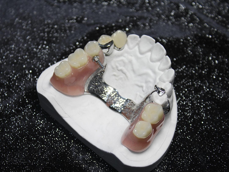 Dental Lab in China