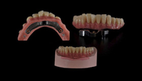 dental outsourcing partner in China